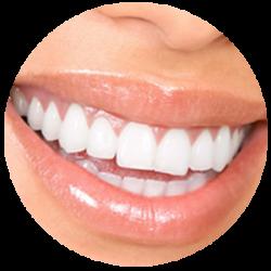 Adequado para cada paciente, rápidos e com controle da sensibilidade. Dentes brancos e um sorriso iluminado.