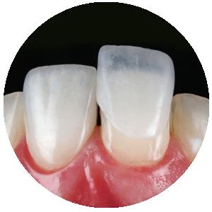 Próteses de alta qualidade e durabilidade, que devolvem a naturalidade do seu sorriso. Facetas, lentes de contato e coroas totais feitas em porcelana pura.