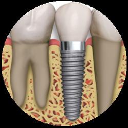 """Implante:Substituição de um dente perdido por uma """"raiz"""" artificial feita de titânio, integrada ao osso com conforto e precisão."""