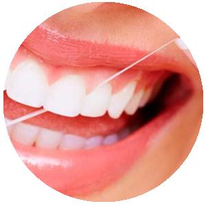 Saúde e bem estar da gengiva, cuidados específicos para preservar a estética e estrutura em torno do dente.